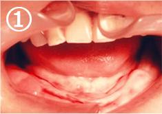歯ぐきが平らで入れ歯が動きます。