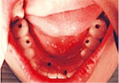 インプラントの上に義歯を固定しました。
