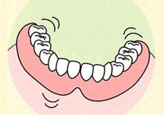 歯が1本も残ってない状態。下顎の入れ歯が動いて、よく噛めません。