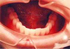 ホックをパチンとはめて入れ歯を固定します。