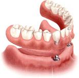 オーバーデンチャー(ホック義歯)