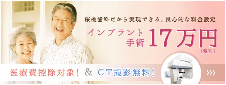 インプラント手術15万円
